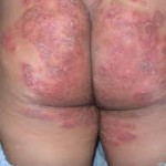 Running mycosis on the buttocks