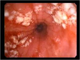 This is how esophagitis is associated with gastroscopy